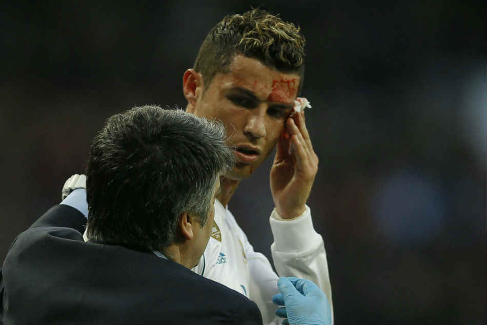 Am I Still The Fairest Bleeding Ronaldo Asks