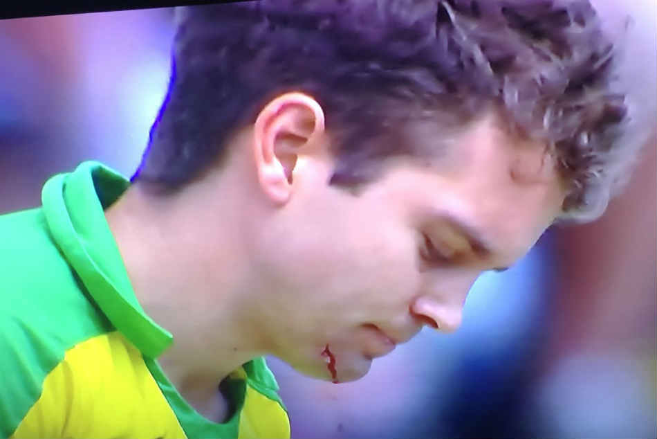 Jofra Archer Knocks Alex Carey S Helmet Off And Draws Blood With Vicious Short Ball Against Australi