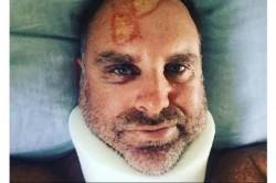 Jonty Rhodes Finds The Map Tamil Nadu On Matthew Hayden Head Injury